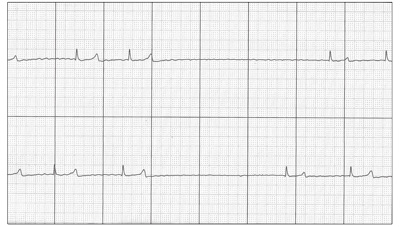abnormal ECG from a horse with atrial fibrillation